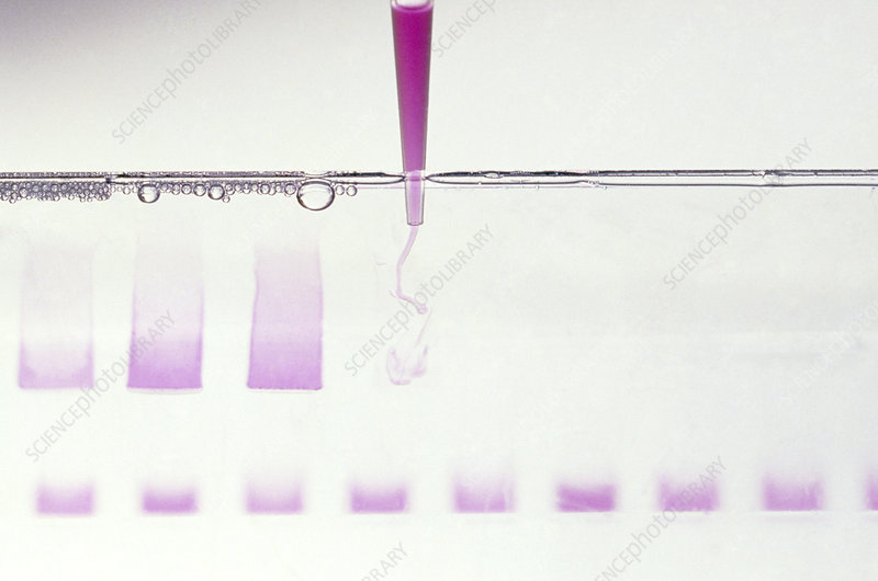 Loading a gel with genes prior to electrophoresis
