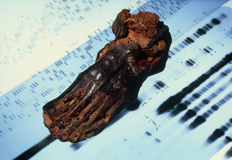 Mummified foot resting on DNA autoradiograms