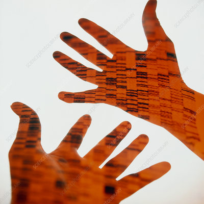Radiogram of DNA on hands
