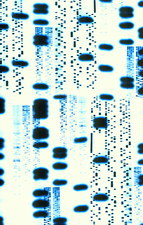 Computer artwork of DNA autoradiogram sequences