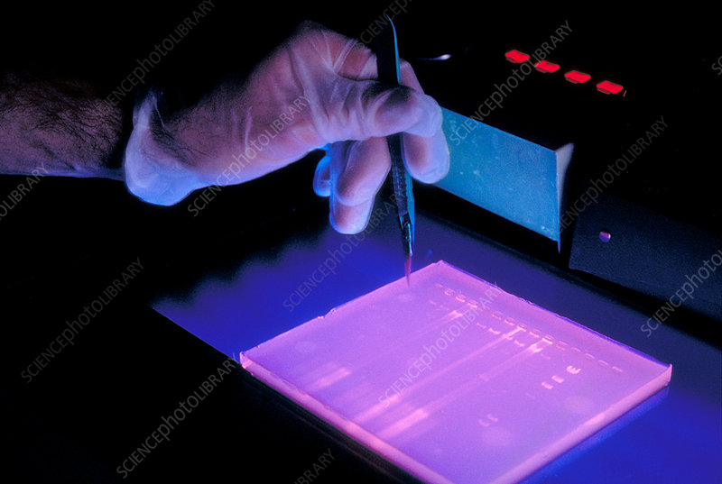 DNA Study Using Electrophoresis
