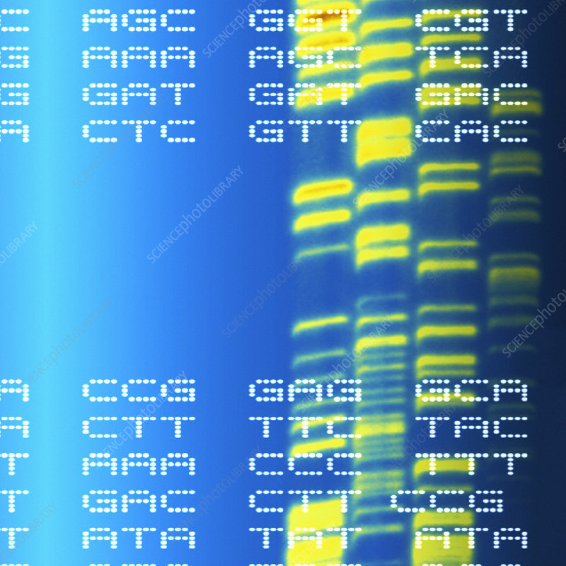 DNA autoradiogram and codons