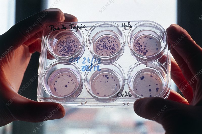 HeLa cultures marked to test cell communication