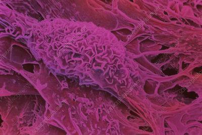 SEM of cultured embryonic stem cells