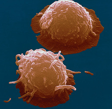 SEM of stem cells