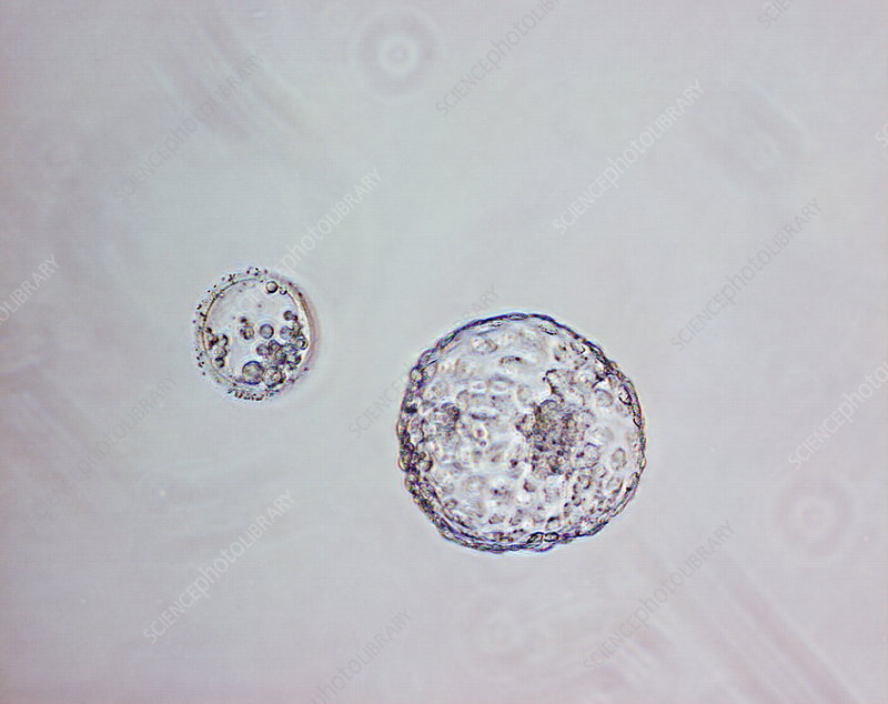Human blastocyst, light micrograph