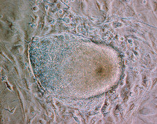 Stem cells, light micrograph