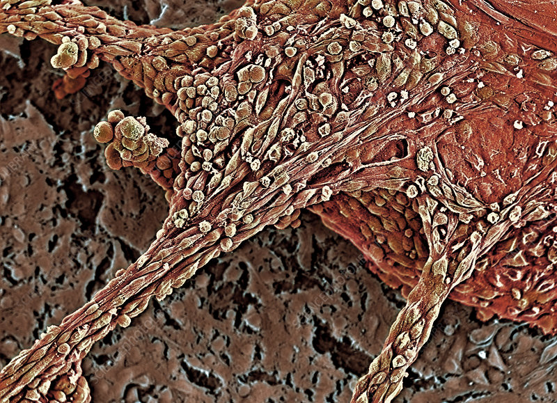 Human embryonic stem cells, SEM