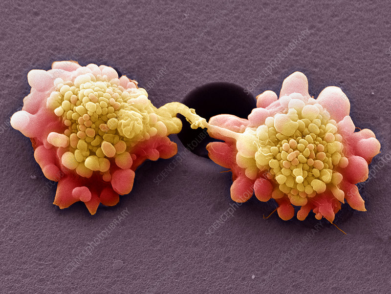 Dividing HeLa cells, SEM