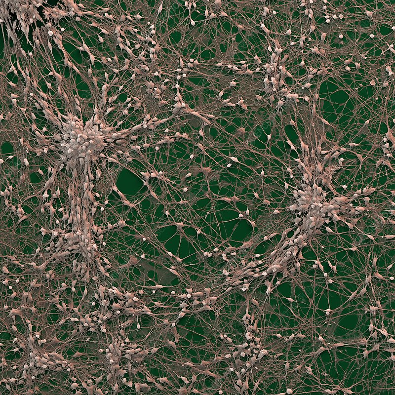 Neural progenitor cells, SEM