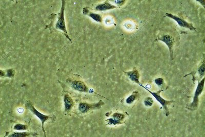 Endothelial stem cells, light micrograph