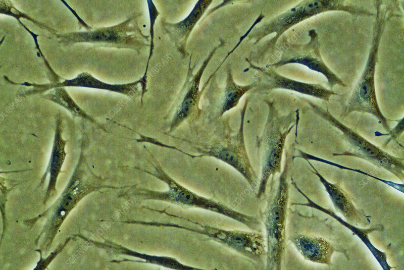 Fibroblast stem cells, light micrograph