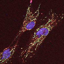 Cell anatomy, confocal light micrograph