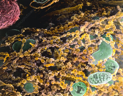Colour SEM of vesicles in ovarian steroid cell