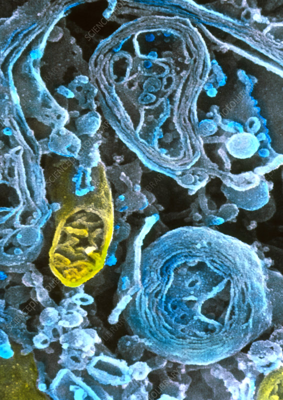 Coloured SEM of lysosomes in intestinal cell