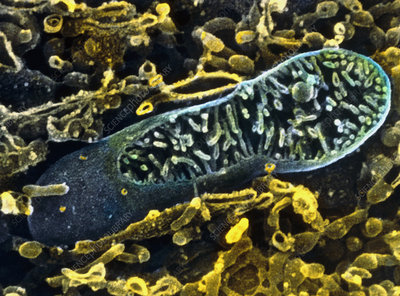 Coloured SEM of mitochondrion from intestinal cell