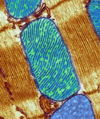 Mitochondrion, TEM