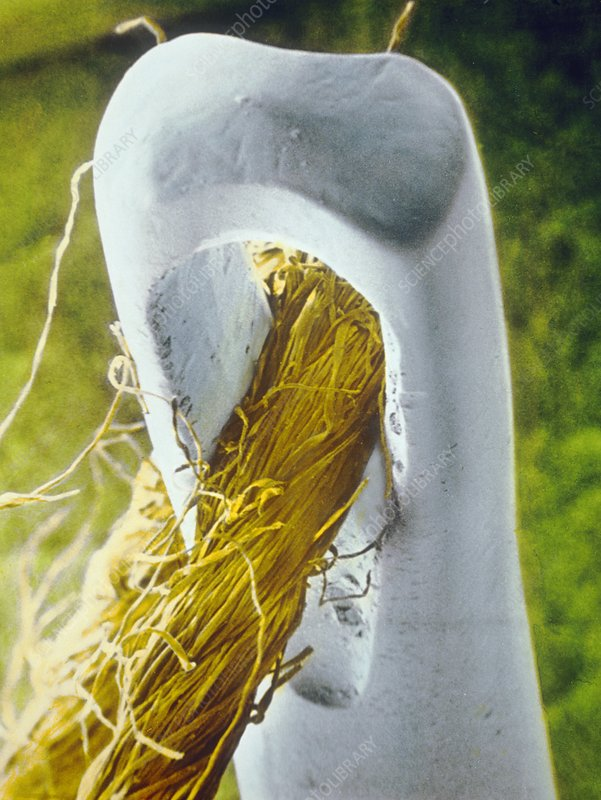 False-colour SEM of cotton thread through needle
