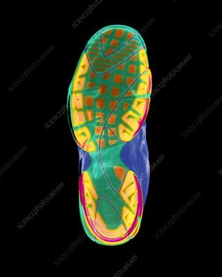 Coloured X-ray of the sole of a trainer shoe