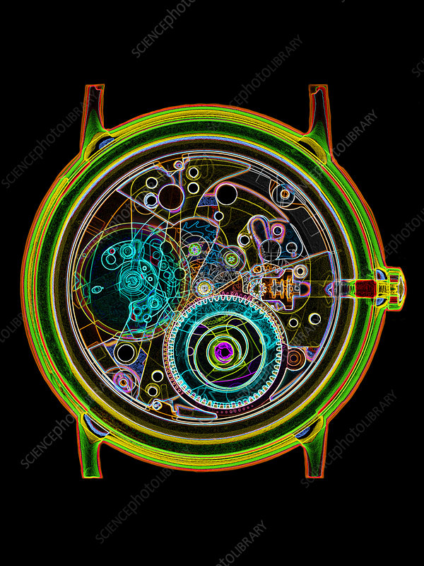 Coloured X-ray of a 17-jewel wrist-watch