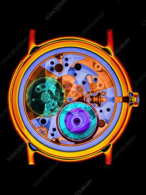 Coloured X-ray of a 17-jewel wrist-watch