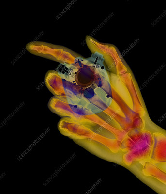 Coloured X-ray of a stopwatch held in a hand