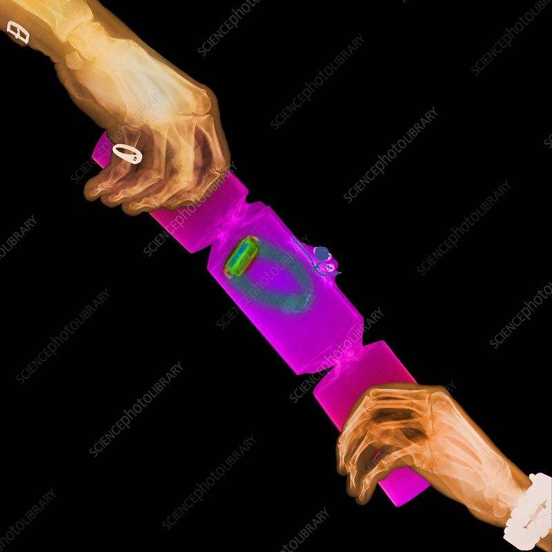 X-ray of hands pulling a party cracker