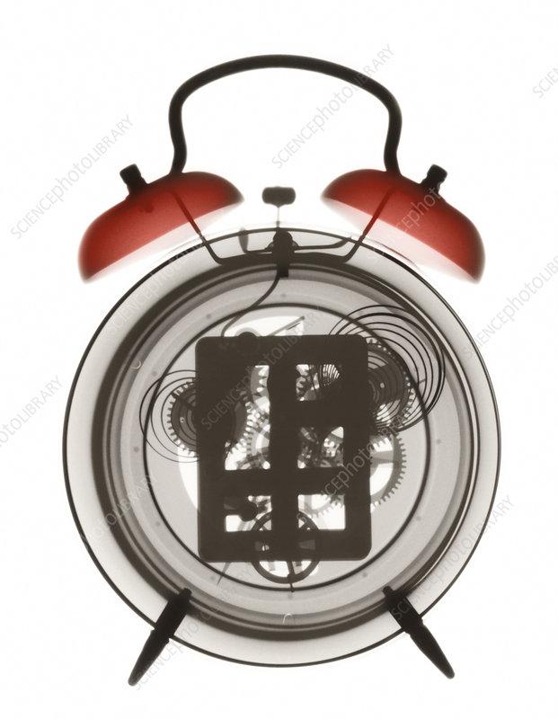 Alarm clock X-ray