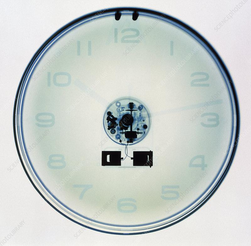 Clock X-ray
