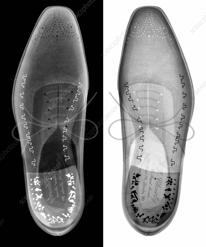 Man's shoes, X-ray