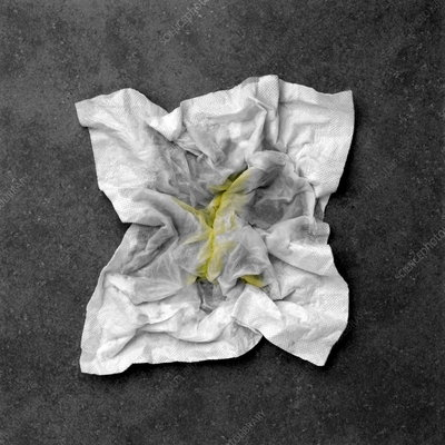 Snotty tissue
