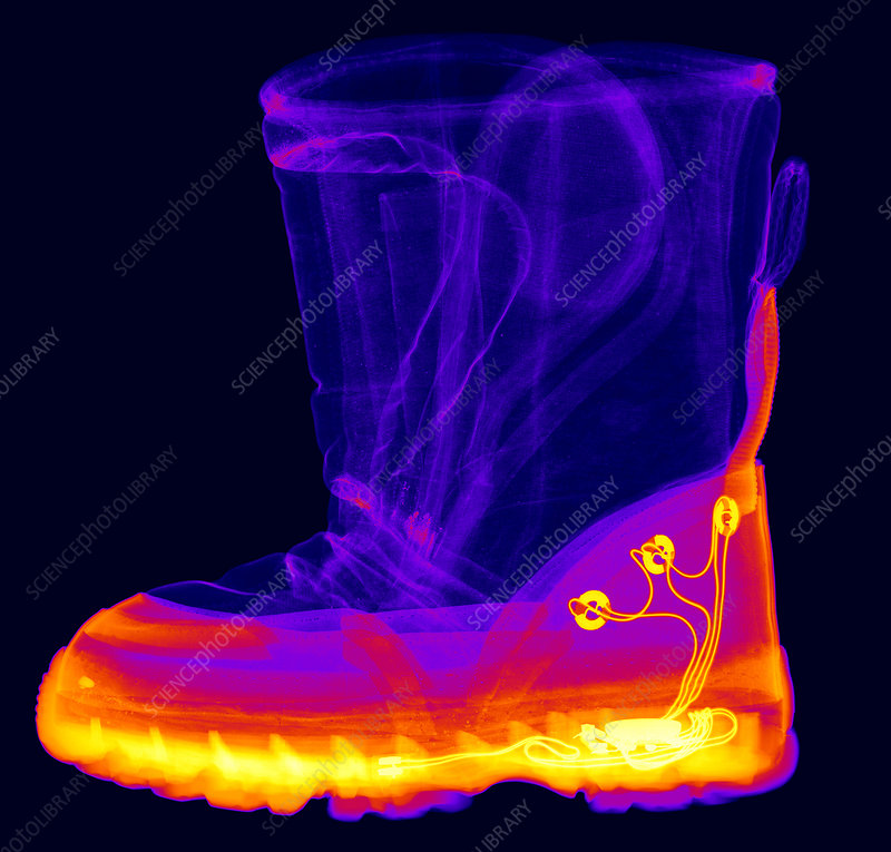 X-ray of a Child's Light-Up Boot