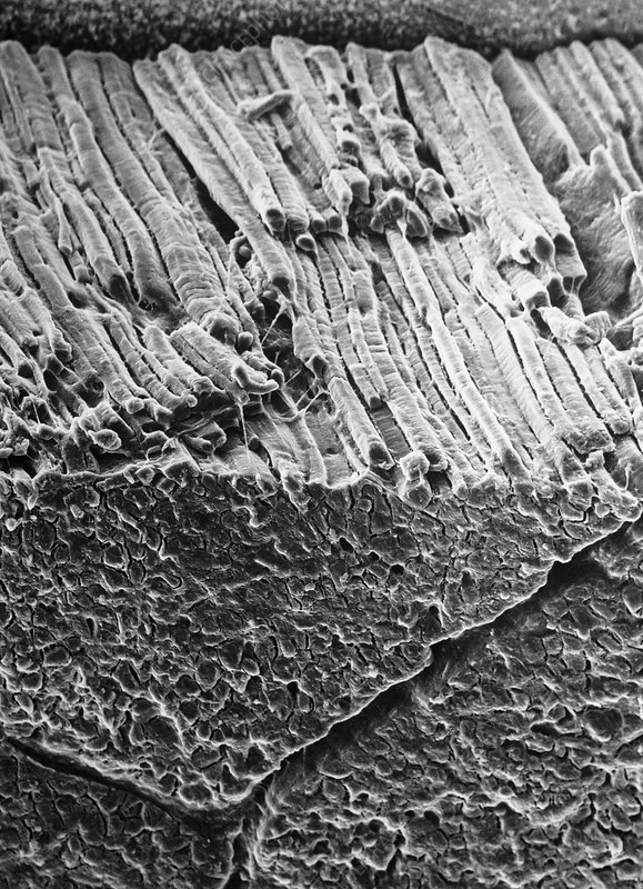 SEM of surface of roast beef showing muscle fibres