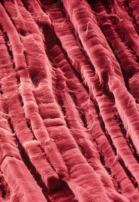 False-col SEM of surface of cooked roast beef