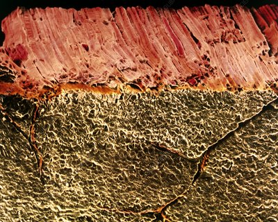 Coloured SEM of roast beef showing muscle fibres