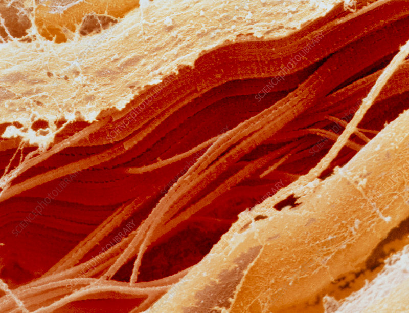 Coloured SEM of section through raw meat