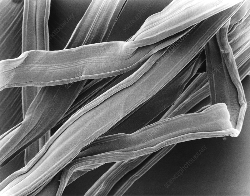 SEM of viscose from tampon
