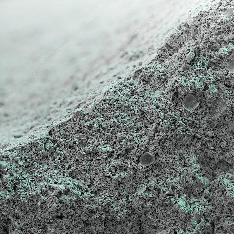 Ceramic filter, SEM