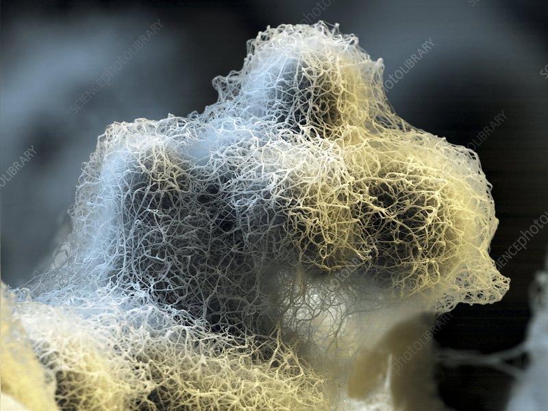 Nanofoam material, SEM