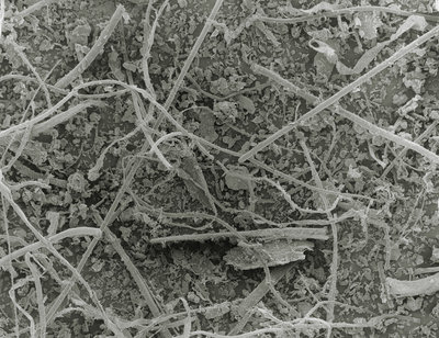SEM of household dust from vacuum cleaner