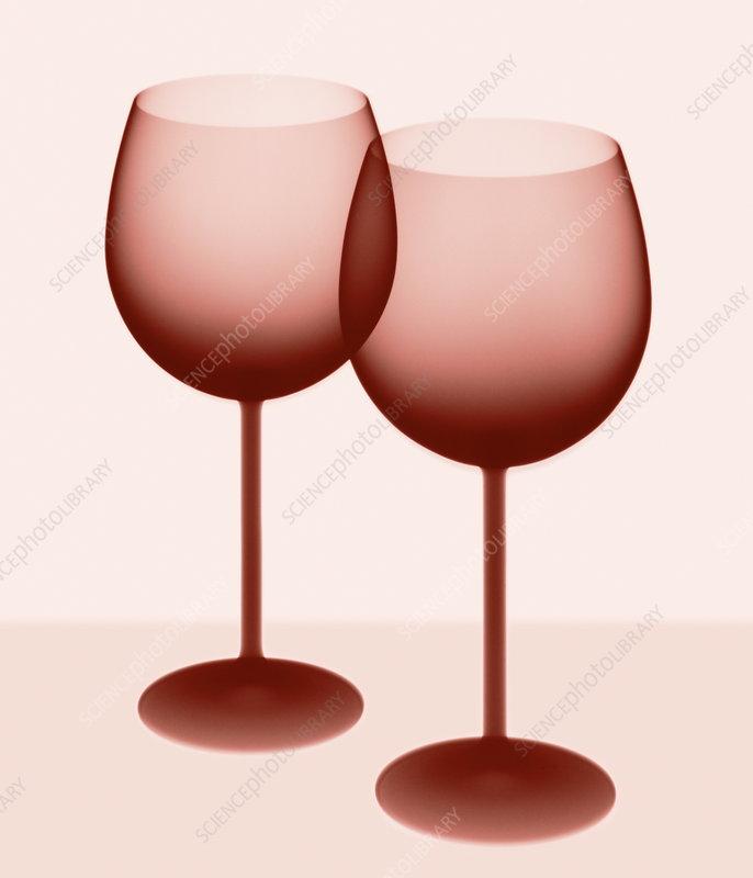 Wine glasses X-ray