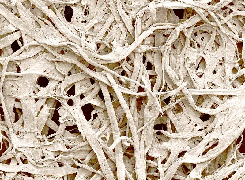 Cellulose Fibers in a Paper Towel