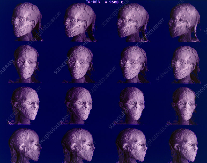 3-D CT scans of mummy head