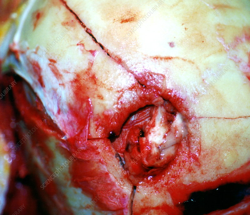 Post-mortem on bullet exit wound in head