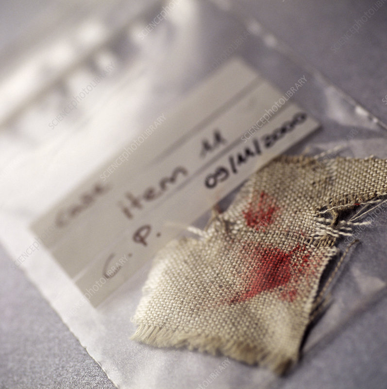 Blood forensics