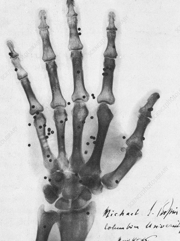 X-ray of a hand with buckshot