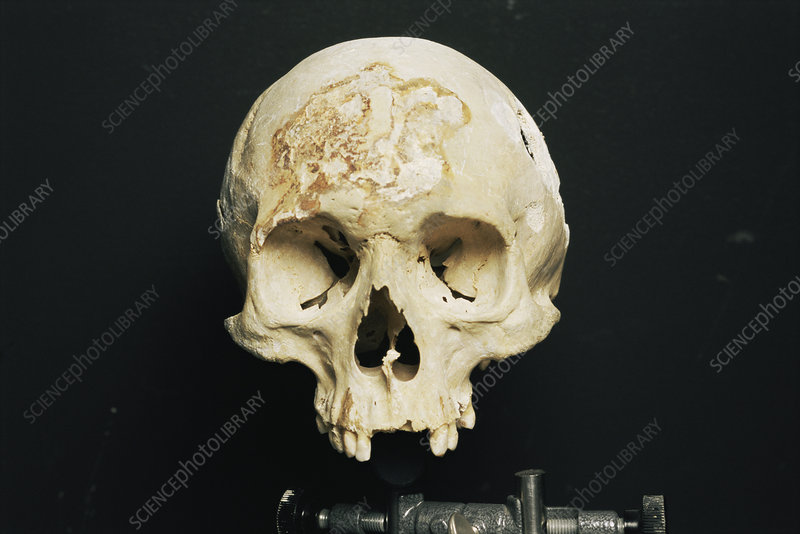 Skull during forensic research