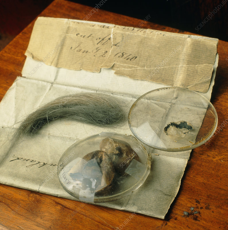John Dalton's preserved eyeballs and hair