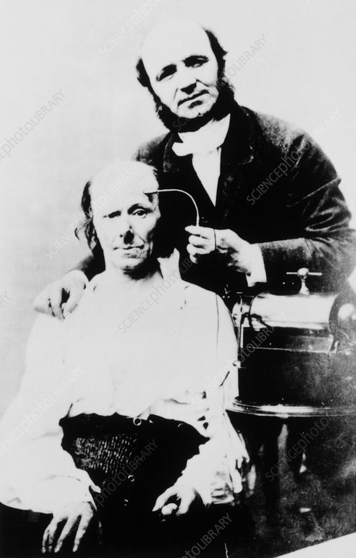 G.B.A. Duchenne, French physician, with patient