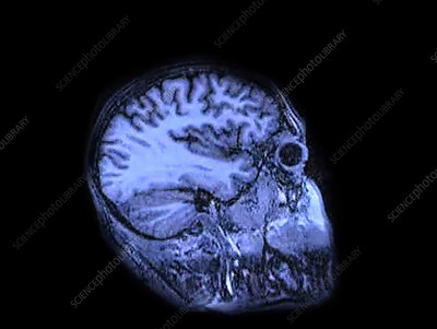 MRI brain scan sequence